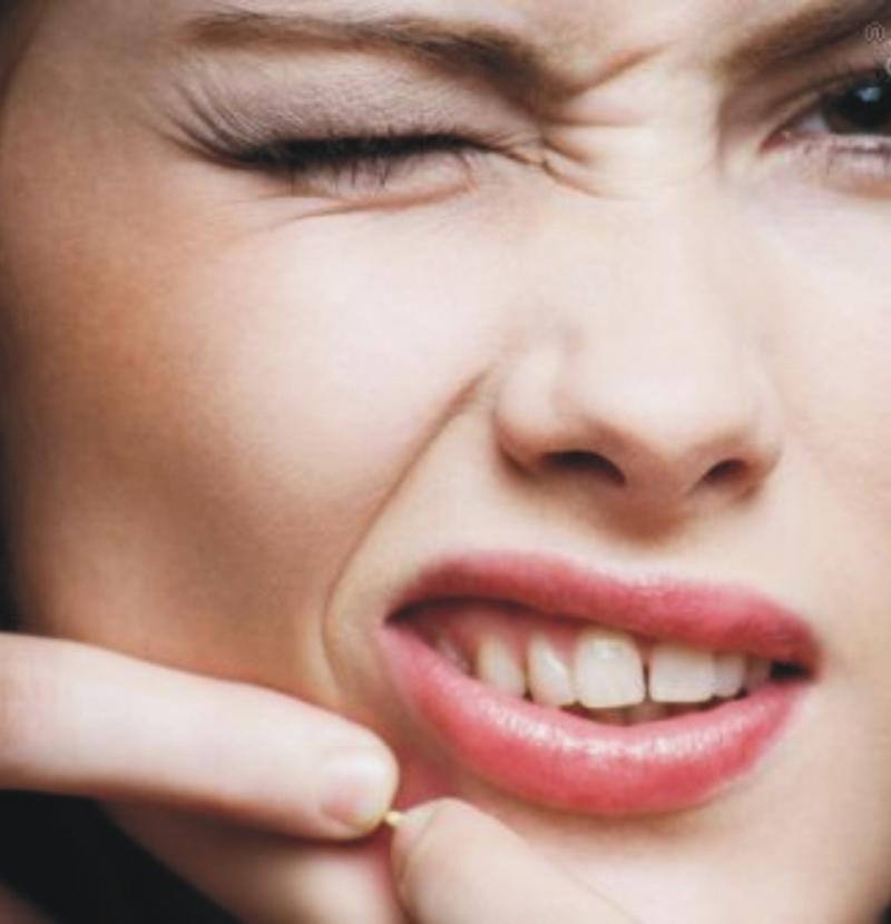 13 navika zbog kojih vam nastaju bubuljice - i danas! 1. deo